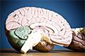 Model van een brein.