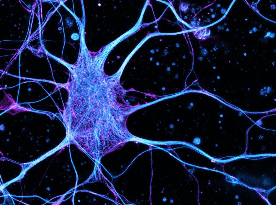 Het transportsysteem in een zenuwcel
