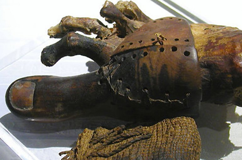 A prosthetic toe from ancient Egypt, now in the Egyptian Museum in Cairo. Source: Wikimedia Commons/Jon Bodsworth